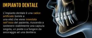 impianto-dentale